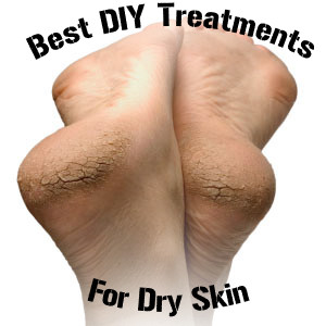 Best DIY Treatment for Dry Skin (1)