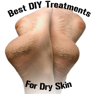 DIY Treatment for Dry Skin