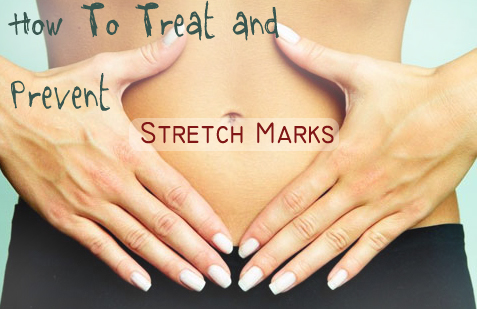 How to treat and prevent stretch marks
