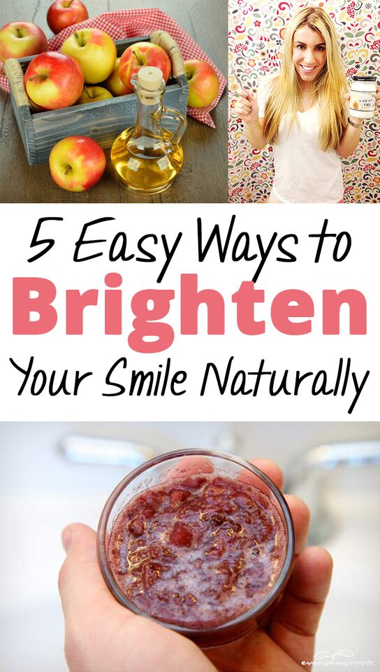 5 Easy Ways to Brighten Your Smile Naturally